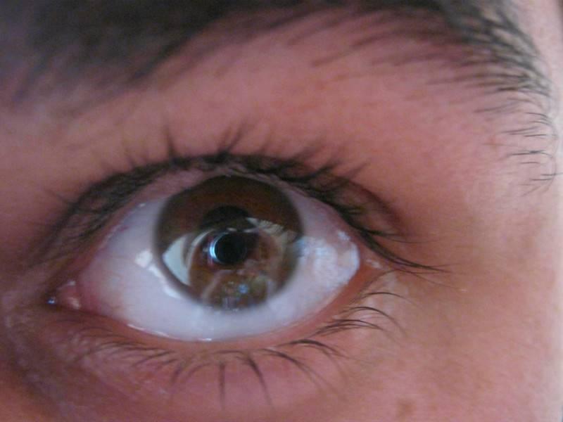 прозрачный пузырек на глазу