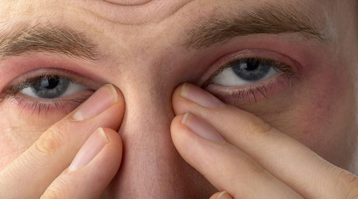 Симптомы и лечение острого и хронического блефарита