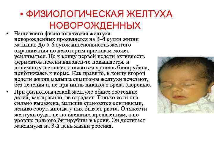 Причины появления и лечение желтухи у новорожденных