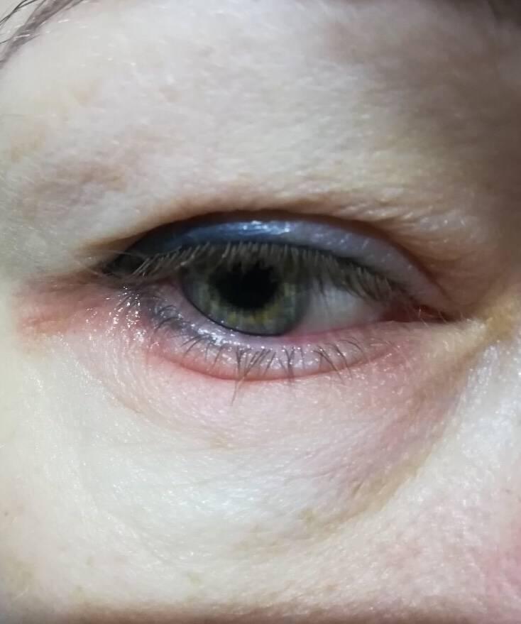 Красное пятно в глазу