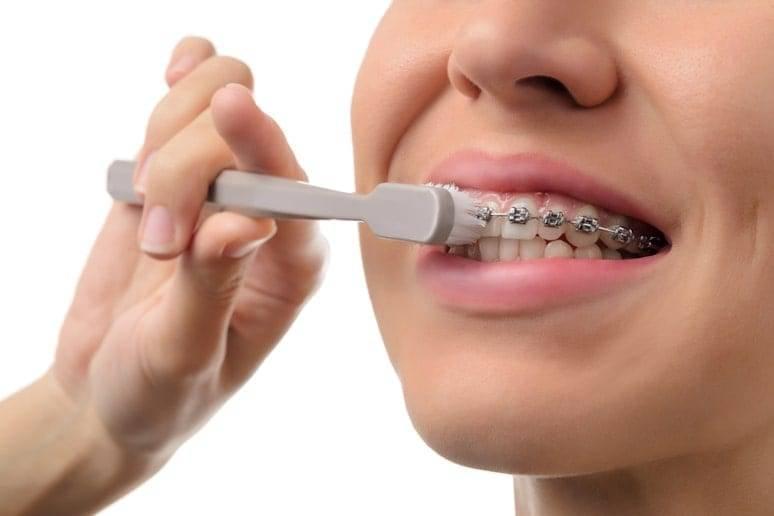 Зубная паста для брекетов — какую выбрать?
