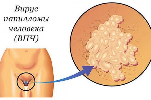 Враг дремлет. когда вирус герпеса приводит к онкологии и как этого избежать - headinsider - новости здоровья
