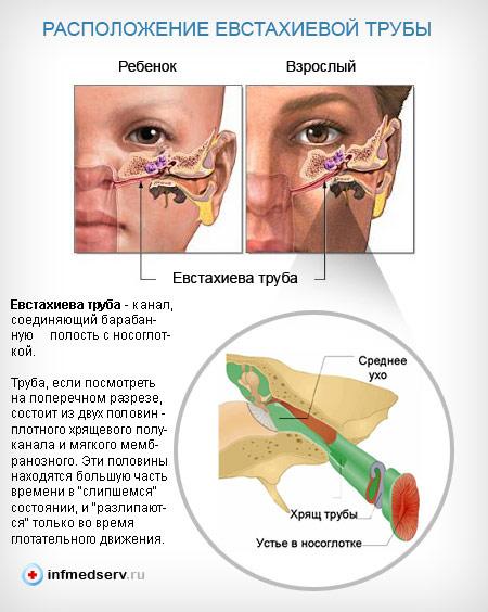 Заложило уши при простуде: лечение, причины