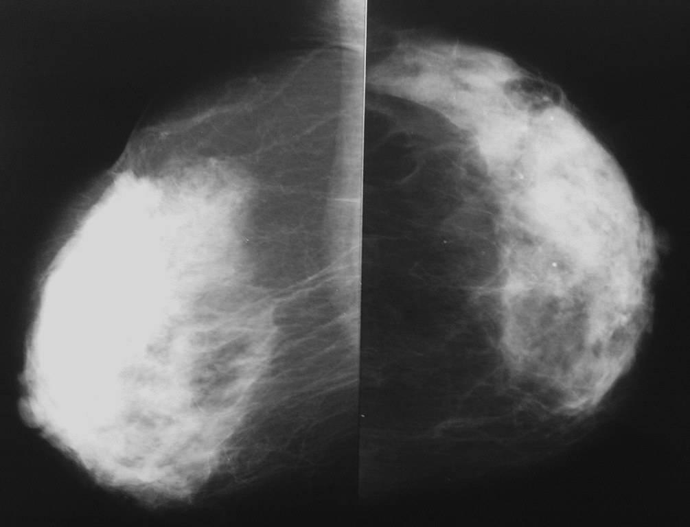 Маммография. показания к обследованию, противопоказания, расшифровка :: polismed.com
