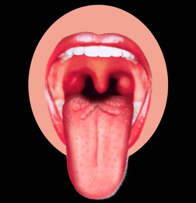 герпес на языке чем лечить