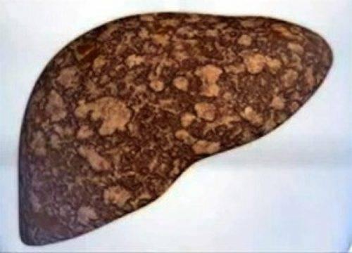 Что такое жировая дегенерация (дистрофия) печени и как ее лечить?