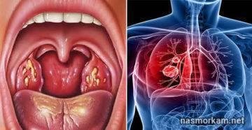 папилломы в горле как лечить