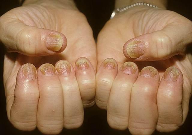 мазь для лечения псориаза ногтей