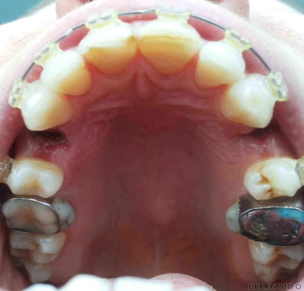 обязательно ли удалять зубы при установке брекетов