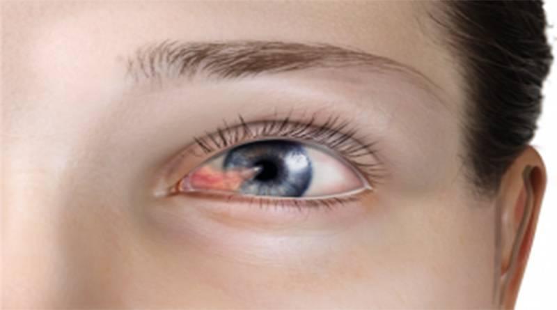 Лечение заболевания глаз птеригиум