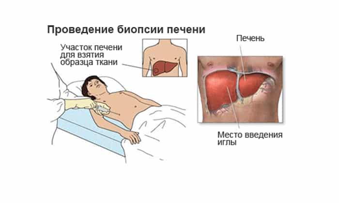 Биопсия печени (пункция): как проводят, показания, последствия, результаты