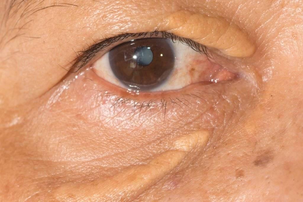 Холестериновые бляшки под глазами как избавиться