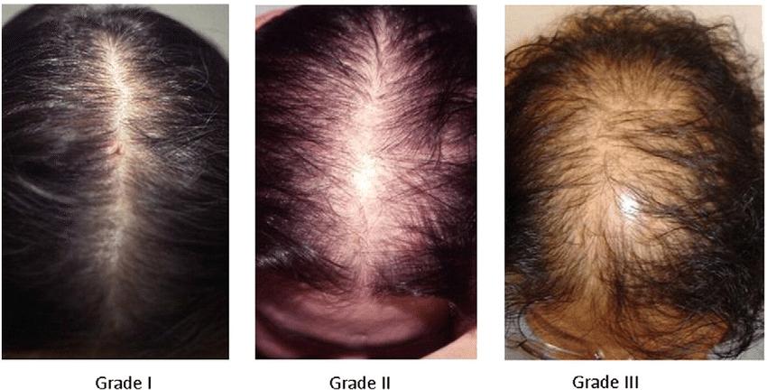 Щитовидная железа и выпадение волос