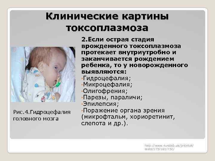 Токсоплазмоз у детей: симптомы, лечение, признаки, диагностика