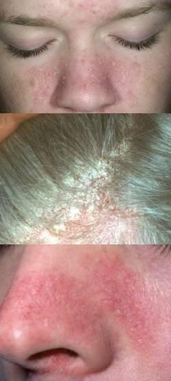 чем лечить дерматит на голове