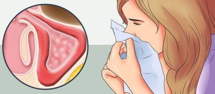 Способы лечения риносинусита у детей