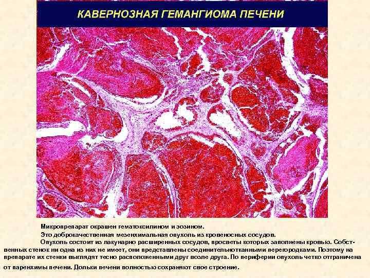 Гемангиома печени – чем опасна опухоль, как ее распознать и лечить?