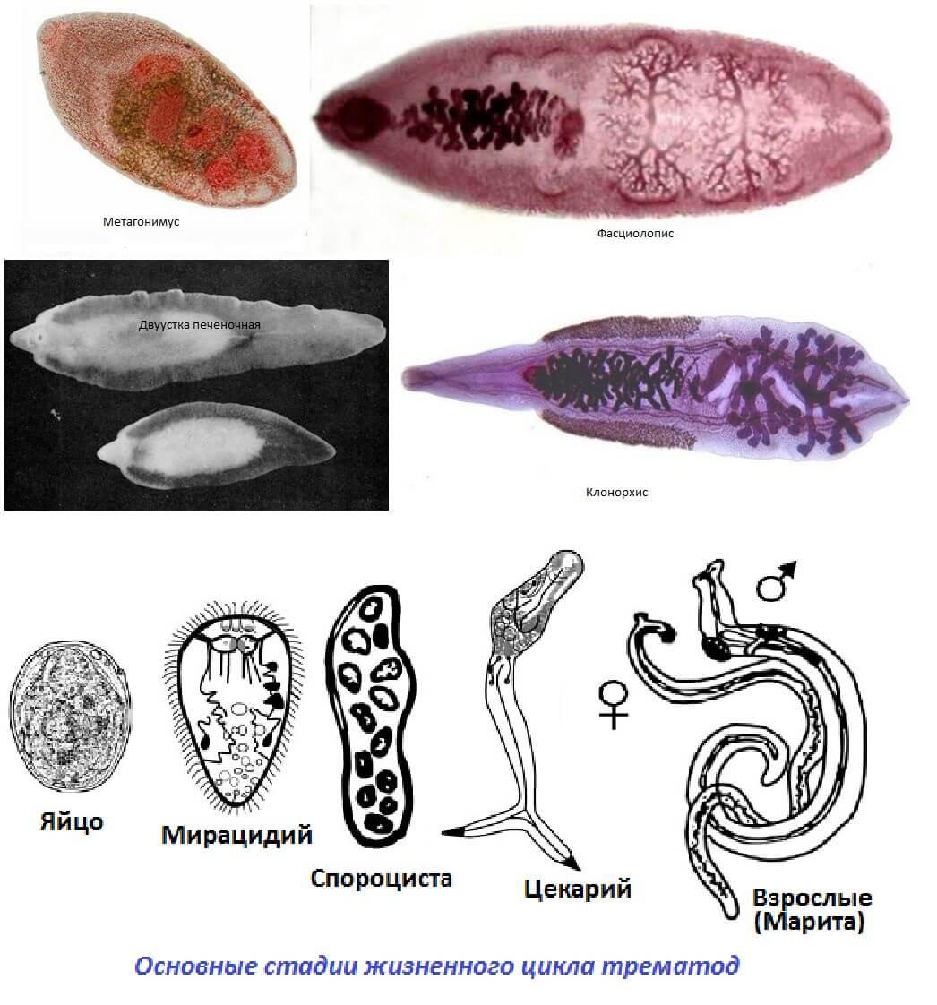 Трематоды: лечение инвазии у людей и виды заболеваний