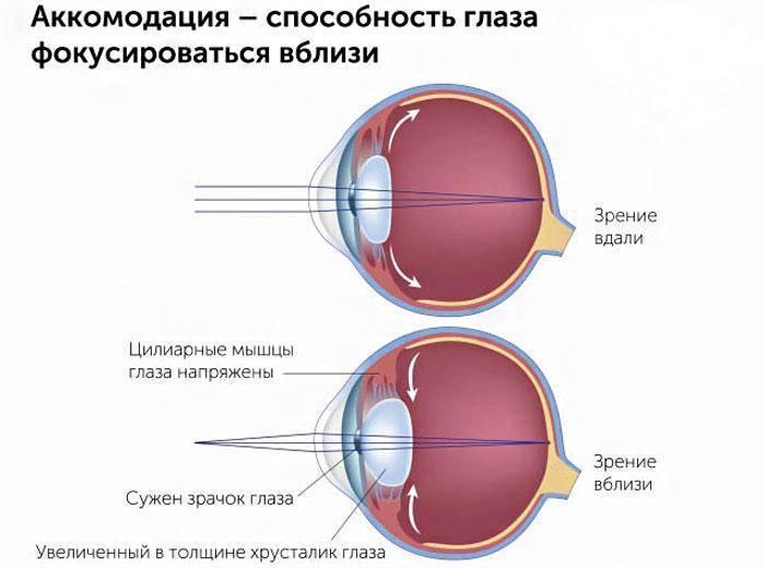 спазм аккомодация глаза