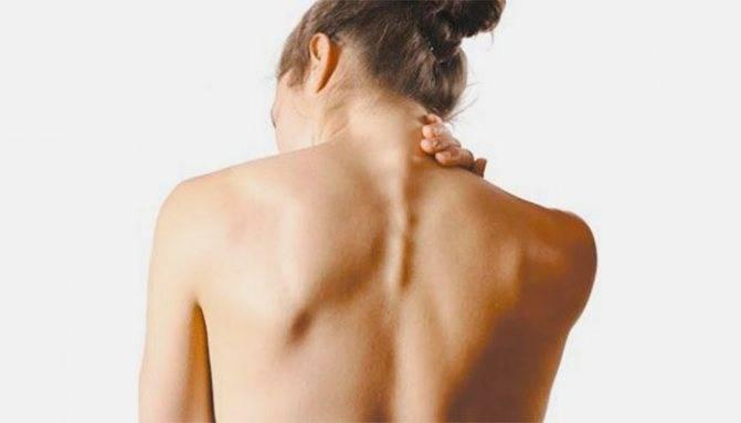 Межреберная невралгия у женщин: специфика и особенности протекания
