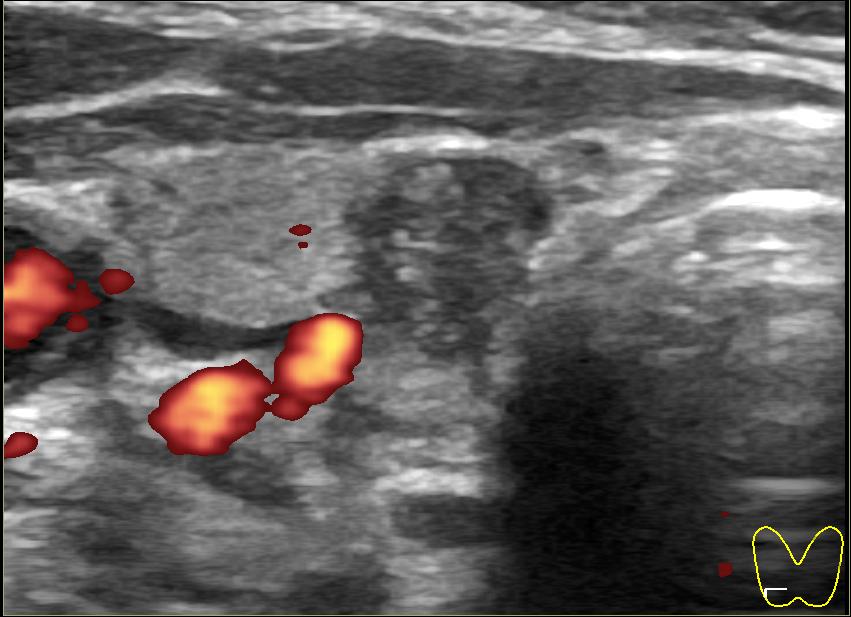 кальцификаты в щитовидной железе