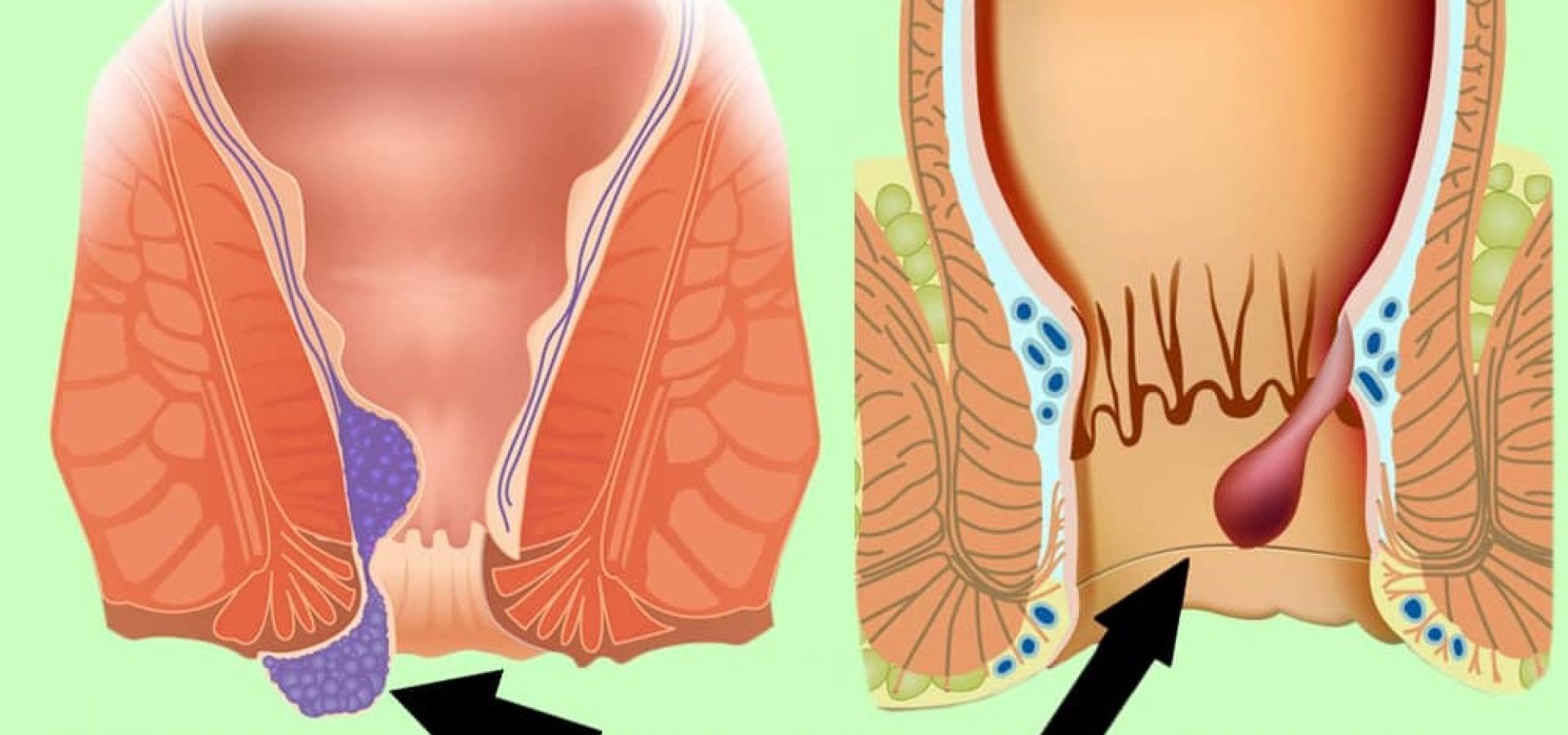 Наружный тромбированный геморрой: симптоматика и лечение
