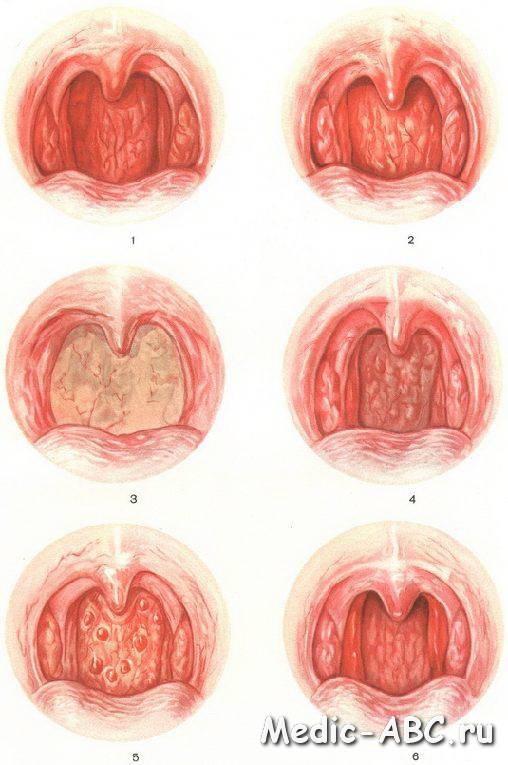 Чем опасен тонзиллит и как от него избавиться? симптомы, диагностика, лечение
