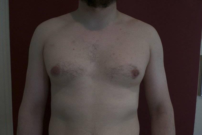Причины и лечение гинекомастии у мужчин