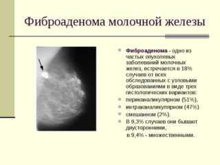 фиброаденома с признаками аденоза