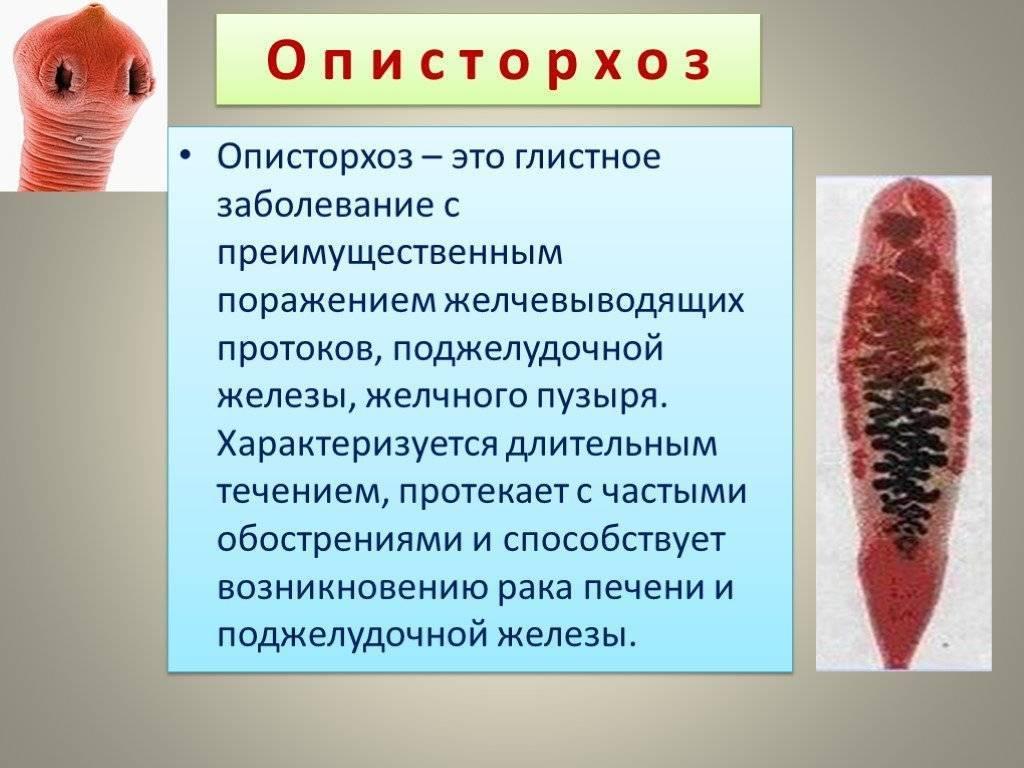 описторхоз у человека