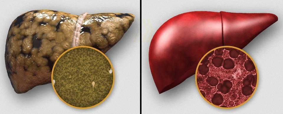 Как восстановить печень при гепатите с?