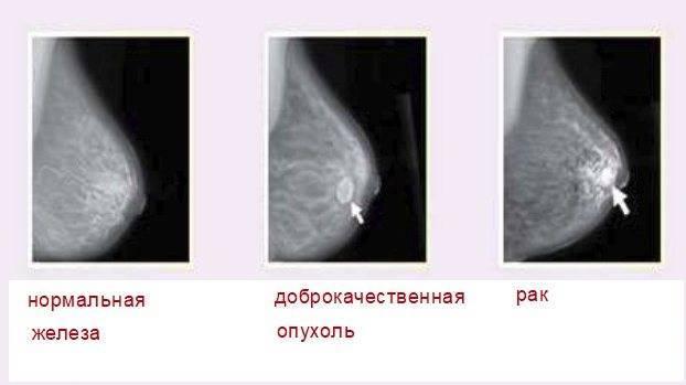 Самообследование груди: как выявить опухоль в молочных железах