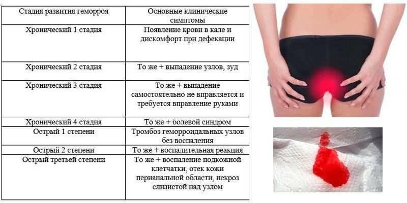 геморрой лечение стадии
