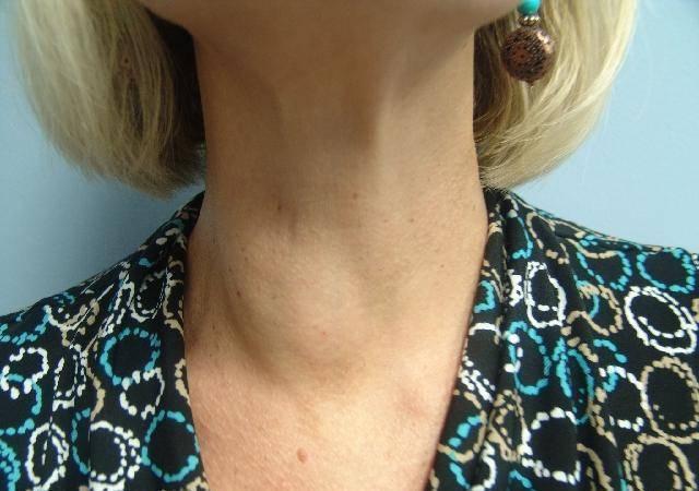 Что делать, если обнаружены узлы на щитовидке?
