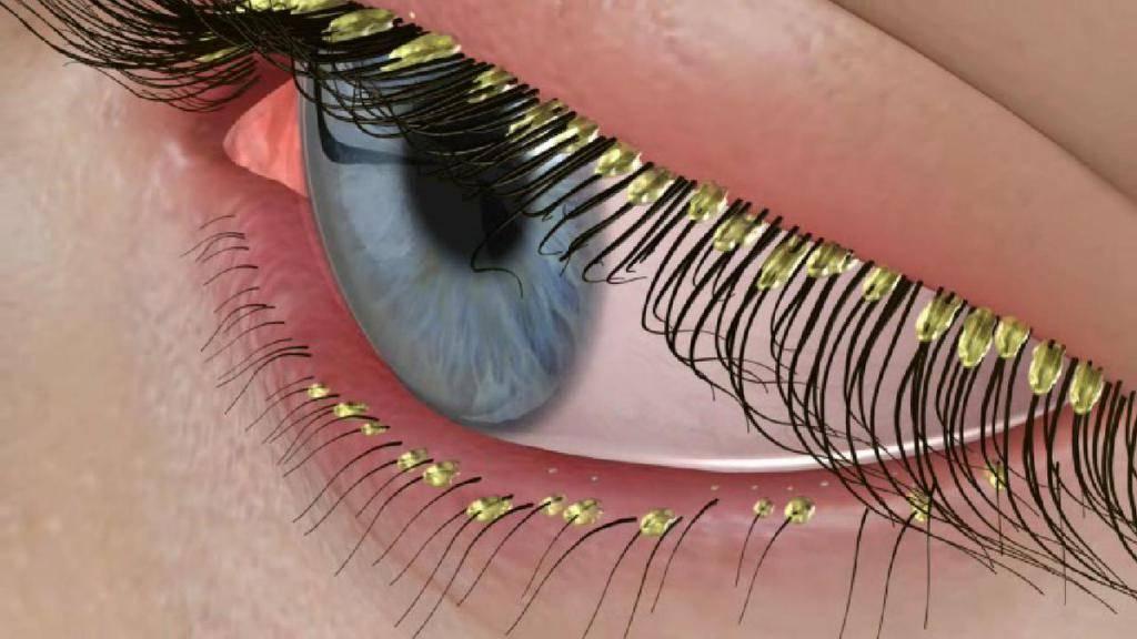 Демодекс глаз — лечение