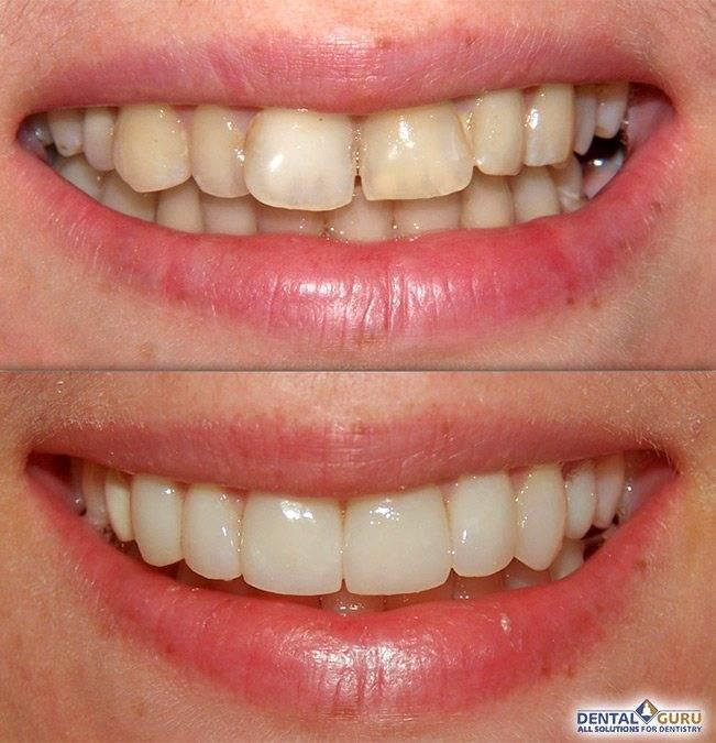 Как качественно выравнивать и выпрямлять зубы в домашних условиях