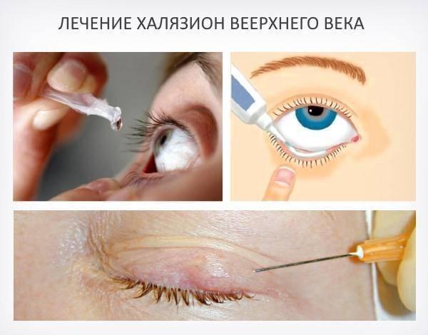 Лечение халязиона нижнего и верхнего века в домашних условиях