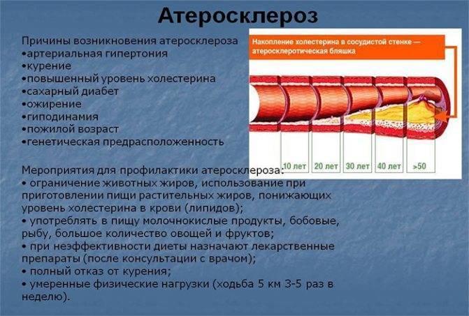 Лечение атеросклероза народными средствами: эффективные рецепты