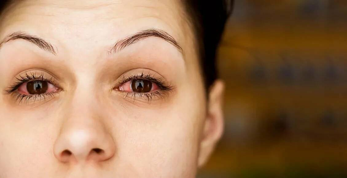 покраснение глаз от линз