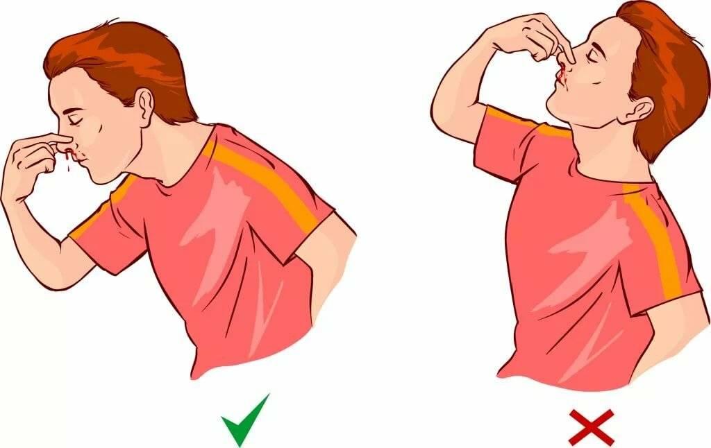 Как сделать, чтобы пошла кровь из носа — без боли, в домашних условиях