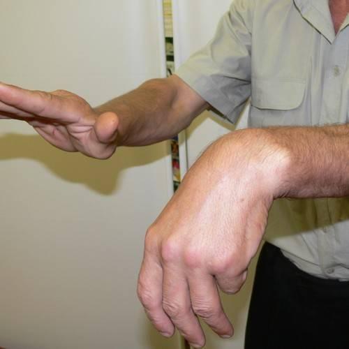 посттравматический неврит лучевого нерва лечение