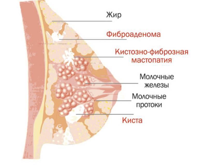 диффузная мастопатия молочных желез лечение