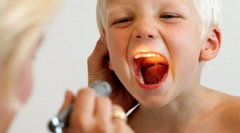 Симптомы, лечение и последствия хронического аденоидита у детей