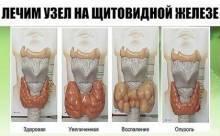Информационный портал о щитовидной железе!