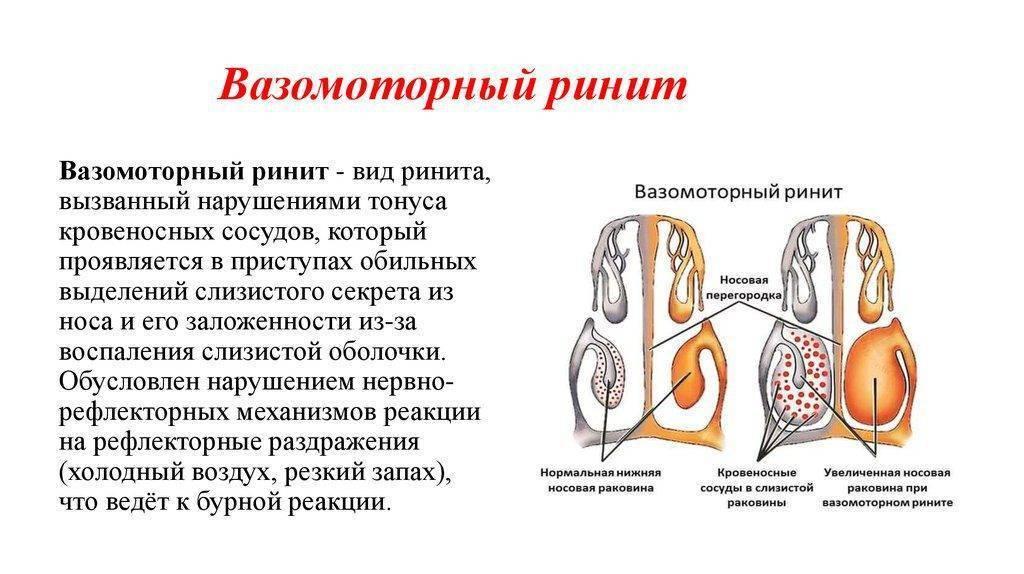 Хронический вазомоторный ринит: симптомы и лечение заболевания