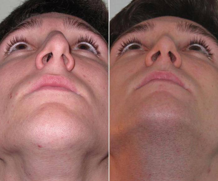 как исправить перегородку носа без операции