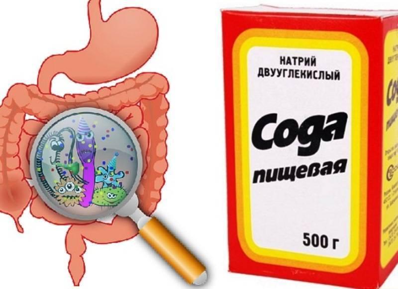 Чистка содой от паразитов: рецепт и инструкция по применению
