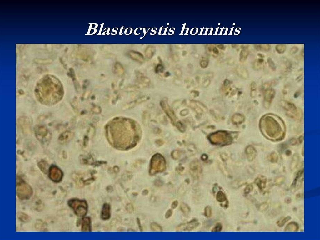 Бластоцисты: что это такое, симптомы, последствия и методы лечения бластоцистоза