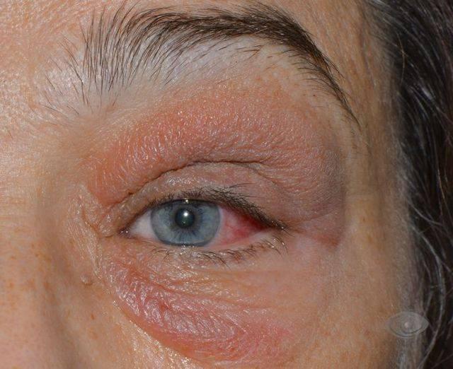 Псориаз на глазах и веках: стадии, симптомы, причины и лечение