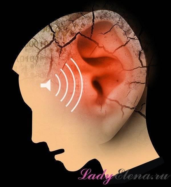 Шум в ушах и голове, причины и лечение. народные средства и препараты от шума в ухе